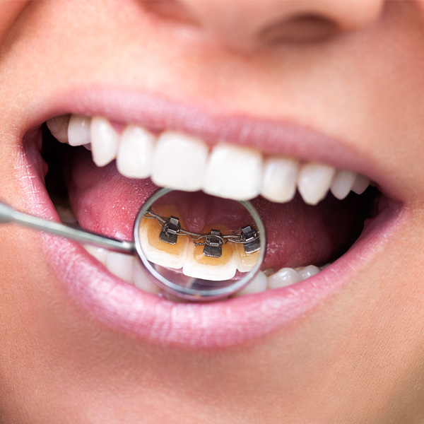 Orthodontic Treatment Cost | Orthoclinique Hitchin
